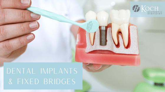 Dental Implants vs Fixed Bridges